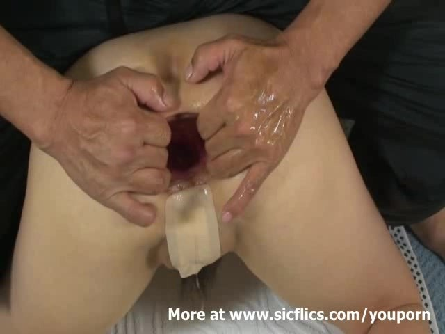Fisting the Wifes Ass and Extreme Anal Pumping - Free Porn Videos - YouPorn